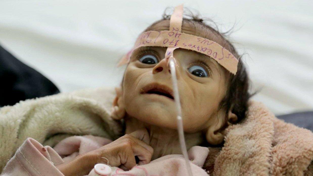 polemos yemeni1